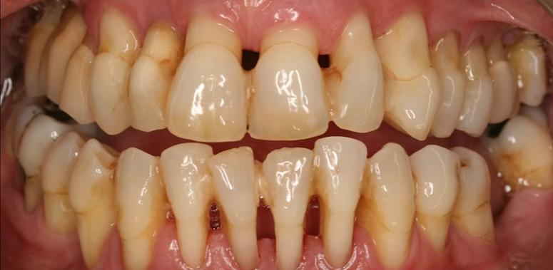 remedios caseros para curar infecciones en la boca